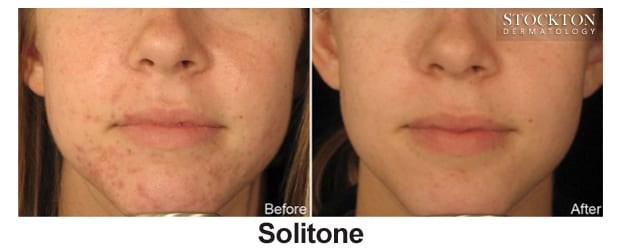solitone before and after photo phoenix az