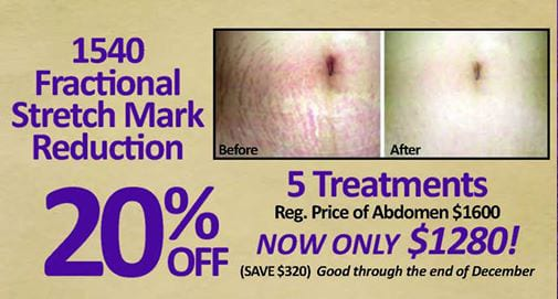 Stretch Mark Special